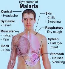 Malaria-Symptoms-inforyt-2